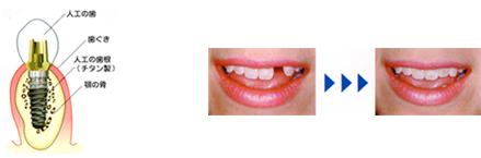 インプラント治療とは、歯の抜けたところにインプラント(人工歯根)を埋め込み、人工の歯をその上に取り付ける治療法です。