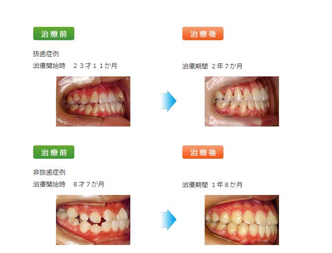 矯正歯科治療下顎前突(かがくぜんとつ)受け口