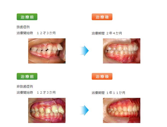 矯正歯科治療「開咬(かいこう)」