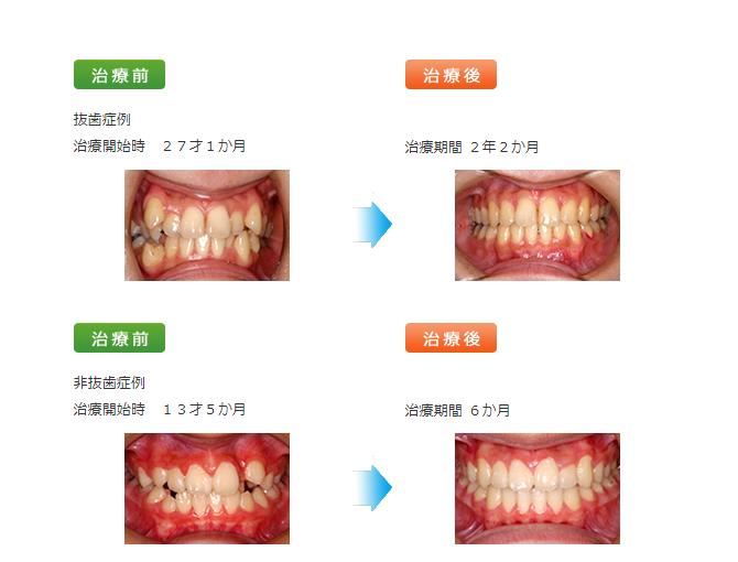 矯正歯科治療「ミドルエイジの矯正」