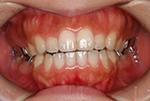 舌側矯正ブラケット(リンガルブラケット)