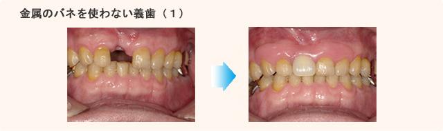義歯治療例